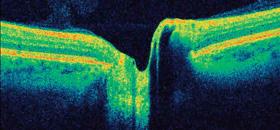 OCT du nerf optique